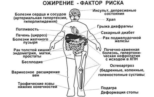 Ожирение и факторы риска