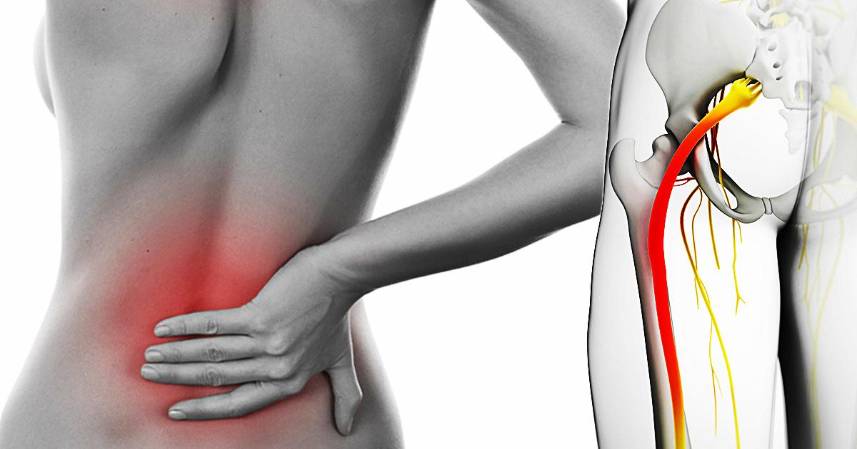 Боль в седалищном нерве. Симптомы